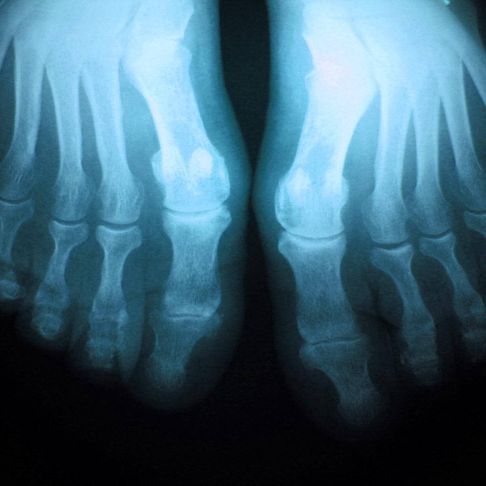 x-ray-foot-1435088-1280x960